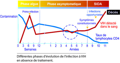 L'infection à VIH et le SIDA